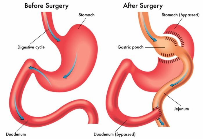 weight loss surgeries options gastric bypass surgery Image Credit UCLA Medical Center